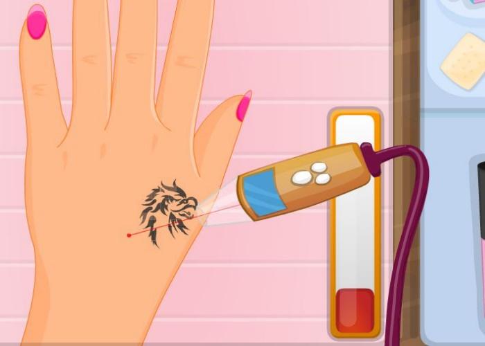 Enlever un tatouage