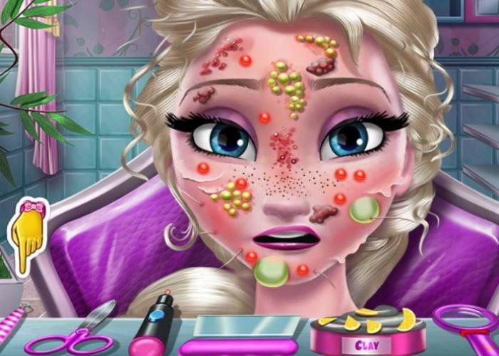 La peau d'Elsa Frozen